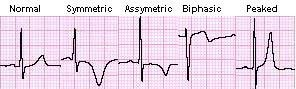T-wave abnormalities