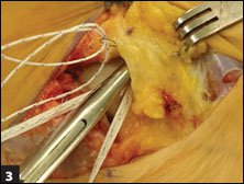 Using a free needle, the FiberTape suture is passed through the ATFL and extensor retinaculum cuff of tissue to ensure that the suture will lie extra-articularly