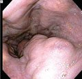 Question 37: Which Asymptomatic Patients With Cirrhosis Should Undergo An Upper Endoscopy To Determine Whether They Have Esophageal Varices?