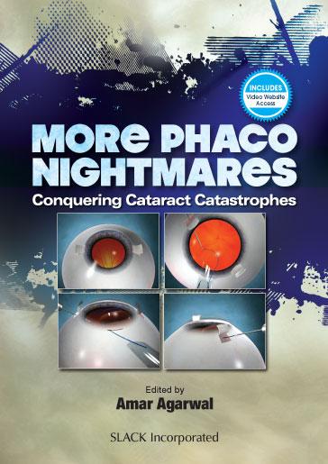 More Phaco Nightmares: Conquering Cataract Catastrophes
