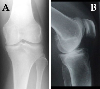 (A) AP x-ray showing medial comp narrowing, osteophytes, varus alignment 4 years post-ACL injury. (B) Lateral x-ray showing posterior subluxation of the femur on the tibia