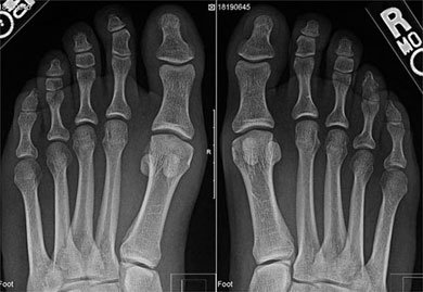 Weight-bearing AP foot x-rays demonstrate retraction of the sesamoid complex on the left, when compared to the normal right foot