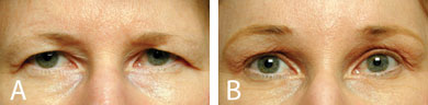 Pre- and postoperative clinical photographs of patient who underwent an endoscopic brow lift. (A) Preoperative photograph showing marked dermatochalasis and brow ptosis. (B) Postoperative photograph showing uniformly higher brow position and significant improvement of dermatochalasis