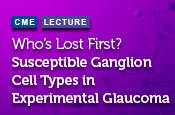 Who's Lost First? Susceptible Ganglion Cell Types in Experimental Glaucoma