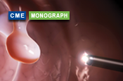 Improving Colorectal Cancer Screening and Prevention: Advances in Polyp Detection and Resection