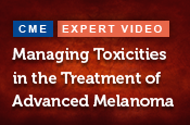 Managing Toxicities in the Treatment of Advanced Melanoma