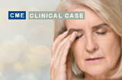 A 65-Year-Old Woman With Dry Eye Disease Preparing for Cataract Surgery