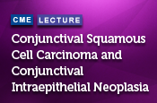 Conjunctival Squamous Cell Carcinoma and Conjunctival Intraepithelial Neoplasia