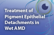 Treatment of Pigment Epithelial Detachments in Wet AMD