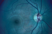 Comparative Treatment Trials for Wet AMD: A Comprehensive Review