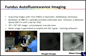 Fundus Autofluorescence Imaging in Clinical Practice: More Than a Research Tool