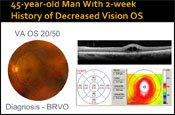Case Presentation: Dosing and Administration of Anti-VEGF Therapies for RVO
