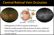 Examining the Pathophysiology of Retinal Vein Occlusion and the Potential Role of Anti-VEGF Agents