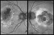 Imaging for Neovascular AMD: When, What, How?
