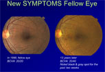 Treatment Strategies for Polypoidal Choroidal Vasculopathy (PCV): The American Experience