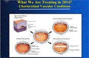 Retinal Anti-VEGF Agents: Pharmacology and Safety
