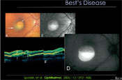 What's New in Fundus Autofluoresence