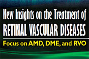 New Insights on the Treatment of Retinal Vascular Diseases: Focus on AMD, DME, and RVO