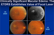 The Role of Intravitreal Steroids in the Evolving DME Treatment Paradigm