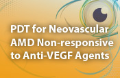 PDT for Neovascular AMD Non-responsive to Anti-VEGF Agents
