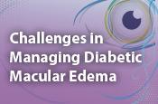 Challenges in Managing Diabetic Macular Edema