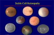 OCT Imaging and Sickle Cell Retinopathy: New Findings