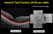 En Face OCT Imaging of Dry Age-related Macular Degeneration