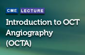 Introduction to OCT Angiography (OCTA)