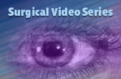 EYE On Innovative Surgical Approaches that Extend Treatment Intervals in Neovascular Age-related Macular Degeneration: Surgical Video of RGX-314