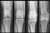 Overview of Radiologic Assessment of Osteoarthritis