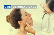 Ace the Case – Focus on Systemic Lupus Erythematosus: A Patient with Cutaneous Lupus