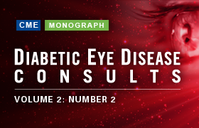 Diabetic Eye Disease Consults: Recent Advances in Diabetic Retinopathy Treatment and Management – Number 2