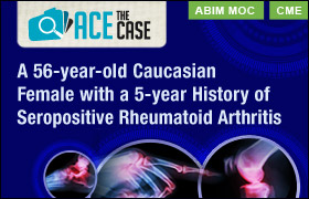 Ace the Case: A 56-year-old Caucasian Female with a 5-year History of Seropositive Rheumatoid Arthritis