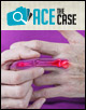 Ace the Case: A 50-Year-Old Woman Presents with Joint Pain