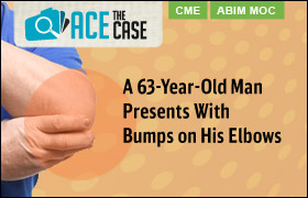 Ace the Case: A 63-Year-Old Man Presents With Bumps on His Elbows