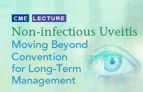 Noninfectious Uveitis: Moving Beyond Convention for Long-Term Management