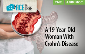 Ace the Case: A 19-Year-Old Woman With Crohn's Disease