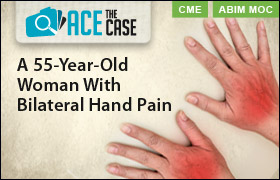 Ace the Case: A 55-Year-Old Woman With Bilateral Hand Pain