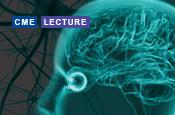 Neuromyelitis Optica Spectrum Disorder: Improving Diagnosis and Treatment