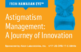Astigmatism Management: A Journey of Innovation