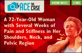 Ace the Case: A 72-Year-Old Woman with Several Weeks of Pain and Stiffness in Her Shoulders, Neck, and Pelvic Region