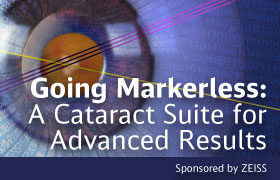 Going Markerless: A Cataract Suite for Advanced Results