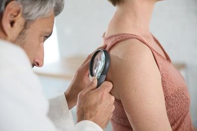 Melanoma Skin Cancer Detection