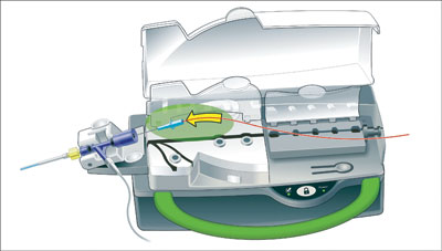 Figure 2. Illustration of loading the single-use cassette with a guidewire.