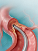 The Evolving Role of Atherectomy