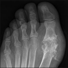 Tophi deposition in the hallux