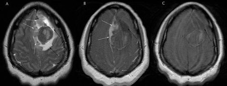Figure 2. Axial MRIs of the brain. The hematoma seen on the CT