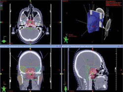 Figure 11 shows the radiation treatment plan.