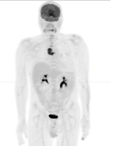 Figure 1: Coronal PET image demonstrates focal uptake in the right mediastinum.