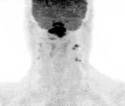 Figure 5: Maximum-intensity projection PET image globally shows the distribution of metabolically active disease in the neck, nasopharynx, and retropharyngeal and bilateral level II and III lymph nodes.